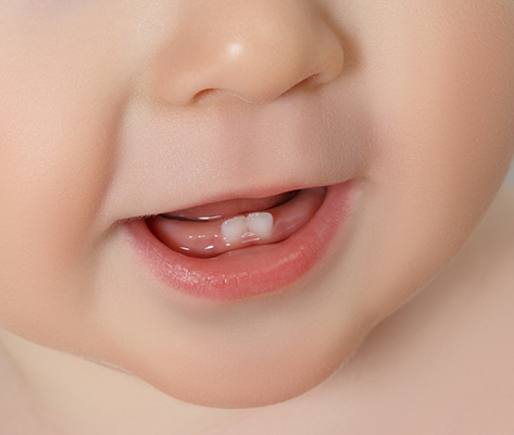 Baby Teeth – When Should They Show