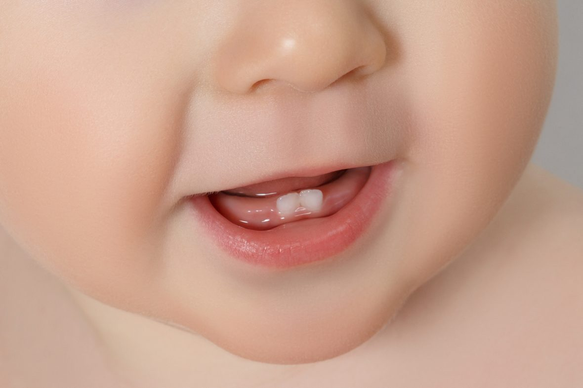 Первые зубы у младенцев в картинках