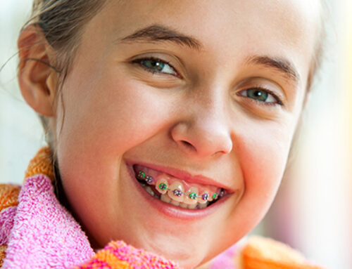 How to maintain Oral Hygiene with Braces!